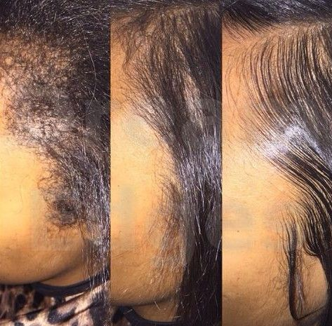 Does Sew In Grow Natural Hair